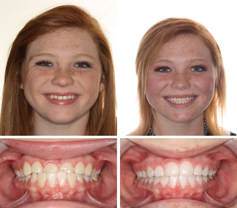 Glass Orthodontics before & after